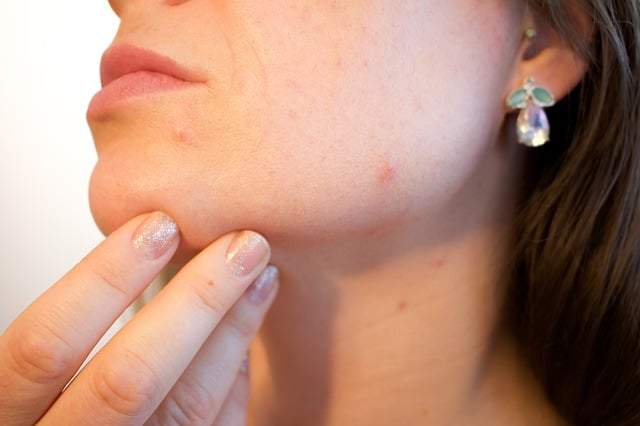 get rid of pimples overnight fast